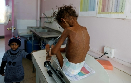 More than 8 million 'a step away' from famine in Yemen